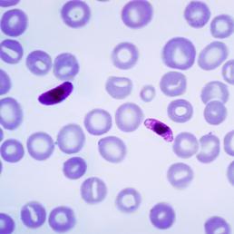 Plasmodium falciparum, malaria parasite