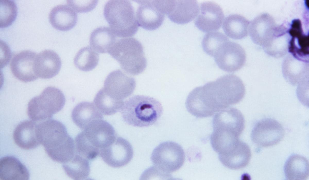 Plasmodium ovale, malaria parasite